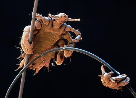 въшка под микроскоп