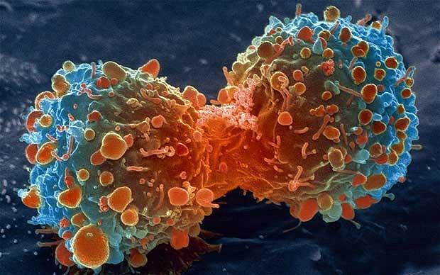 ракова болест