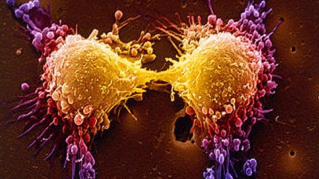 тумор