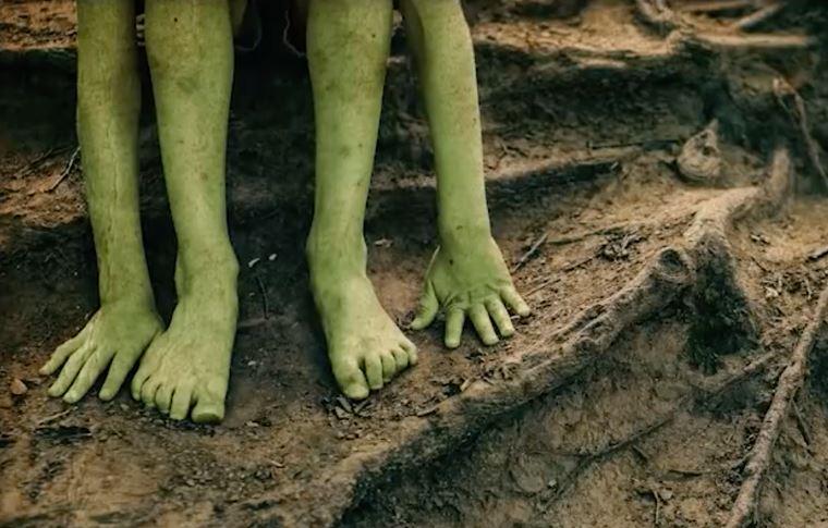 Деца със зелена кожа, заболяване или нещо друго?